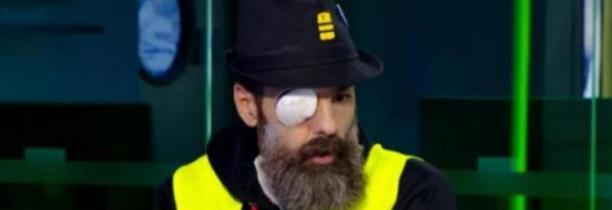 Jérôme Rodrigues annonce avoir perdu definitivement son oeil